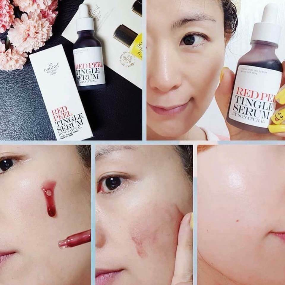 Công dụng Red peel tingle serum
